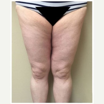 35-44 year old woman treated with Thigh Lift after 2243384