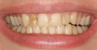 Porcelain Veneers before 75407