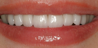Porcelain Veneers after 75407