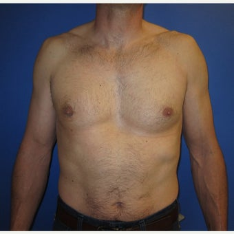 39 year old gentleman with right sided gynecomastia after 1821672