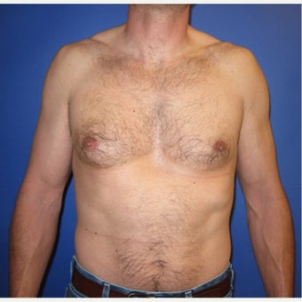 39 year old gentleman with right sided gynecomastia before 1821672