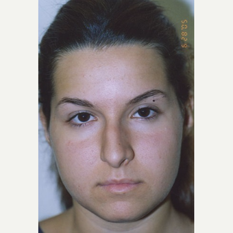 17 or under year old woman treated with Rhinoplasty before 3406152