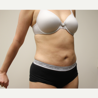 Liposuction after 3417885