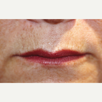 55-64 year old woman treated with Restylane™ to enhance lips. before 3180312