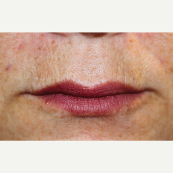 55-64 year old woman treated with Restylane™ to enhance lips. after 3180312