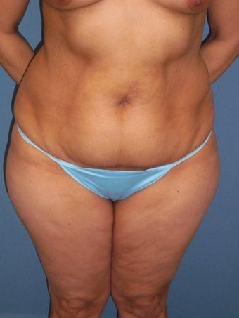 Tummy  Tuck before 340078
