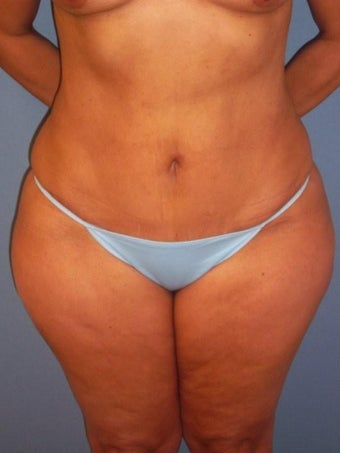 Tummy  Tuck after 340078