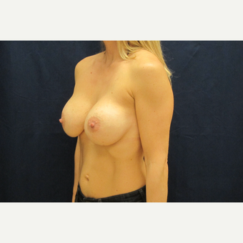 35-44 year old woman treated with Breast Implants after 3301162