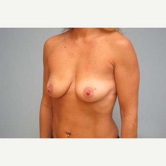 35-44 year old woman treated with Breast Implants before 3301162