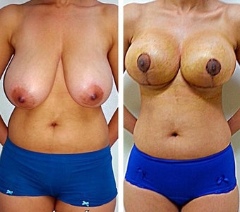 18-24 year old woman treated with Breast Lift before 1979202