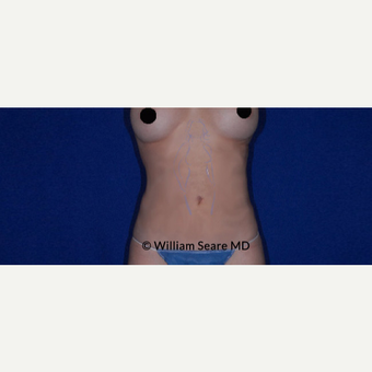 35-44 year old man treated with Tummy Tuck after 3749592