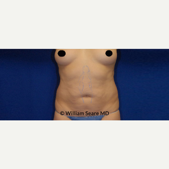35-44 year old man treated with Tummy Tuck before 3749592