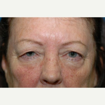 60 year old woman treated with upper blepharoplasty (eyelid lift) before 1661971