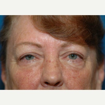 60 year old woman treated with upper blepharoplasty (eyelid lift) after 1661971