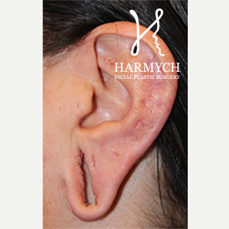 Ear Lobe Repair Surgery, 25-34 year old woman before 1950763