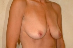 Breast Lift before 133311