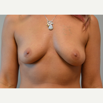 35-44 year old woman treated with Breast Augmentation before 3161506