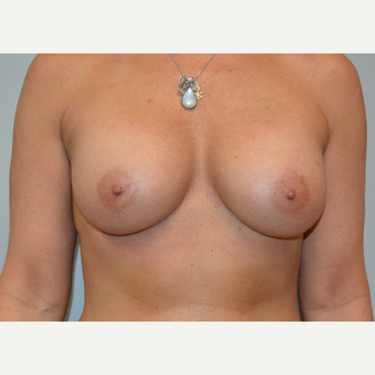 35-44 year old woman treated with Breast Augmentation after 3161506