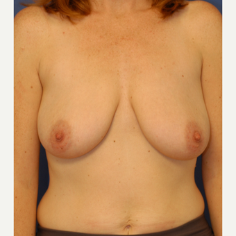 35-44 year old woman treated with Breast Lift before 3619227