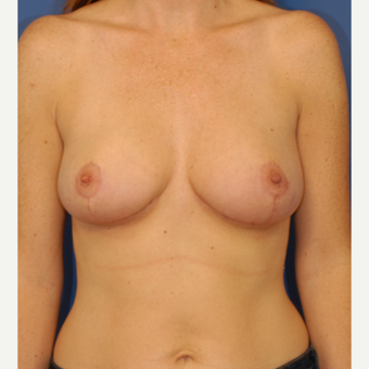 35-44 year old woman treated with Breast Lift after 3619227