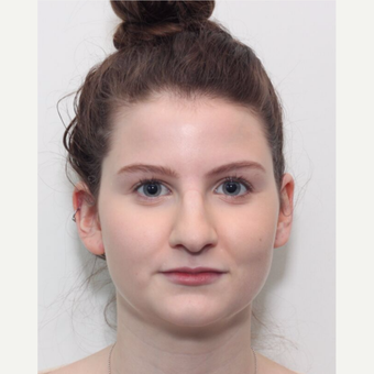 18-24 year old woman treated with Rhinoplasty before 3224892