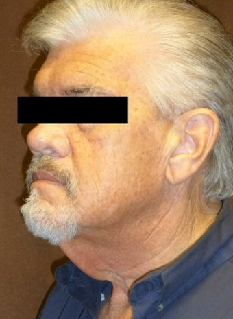 65-74 year old man treated with Neck Lift 2558444