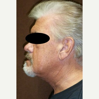 65-74 year old man treated with Neck Lift after 2558444