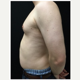 25-34 year old man treated with Male Breast Reduction before 3218524
