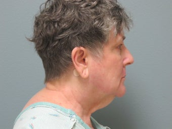 65-74 year old woman treated with Facelift 3109421