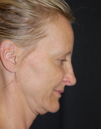 45-54 year old woman treated with Facelift 1782743