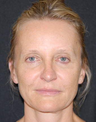45-54 year old woman treated with Facelift before 1782743
