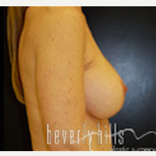 45-54 year old woman treated with Breast Implants after 1546319