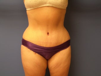 46 yo Female Abdominoplasty Tummy Tuck Mommy Makeover after 866936