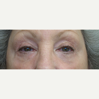 Eye Bags Treatment after 3305779