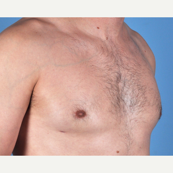 35-44 year old man treated with Male Breast Reduction after 3810153
