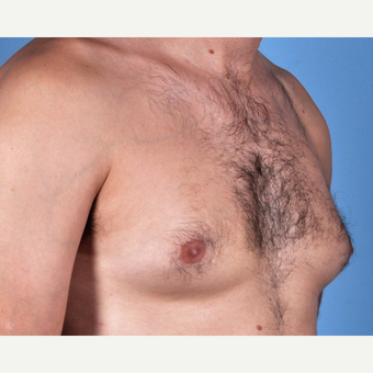 35-44 year old man treated with Male Breast Reduction before 3810153