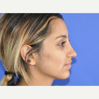 18-24 year old woman treated with Rhinoplasty after 3219752