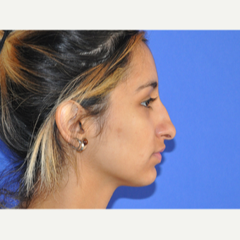 18-24 year old woman treated with Rhinoplasty before 3219752
