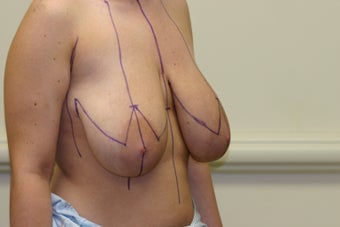 Breast Reduction 1025954