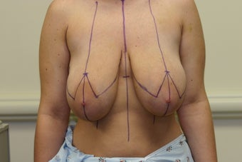 Breast Reduction before 1025954