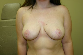 Breast Reduction after 1025954