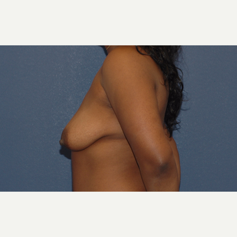 35 year old woman treated with Breast Lift with Implants before 3283365