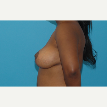 35 year old woman treated with Breast Lift with Implants after 3283365