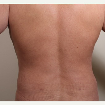 35-44 year old man treated with Liposuction of the waist (flank) after 3320078