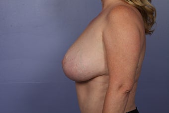 Breast Reduction after 687555