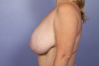 Breast Reduction before 687555