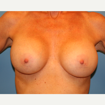 44 year old woman treated with Breast Augmentation after 3482811