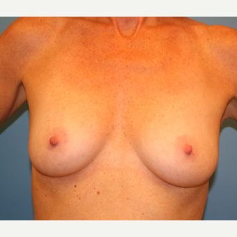44 year old woman treated with Breast Augmentation before 3482811