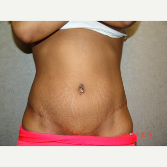 18-24 year old woman treated with Tummy Tuck after 3220635