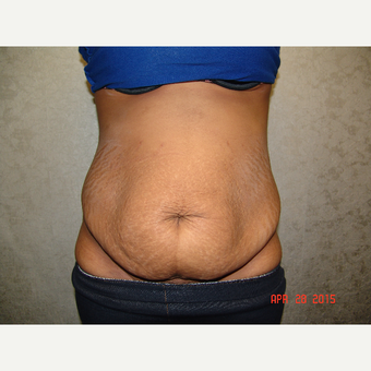 18-24 year old woman treated with Tummy Tuck before 3220635